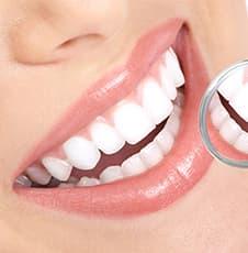 白い歯にする治療