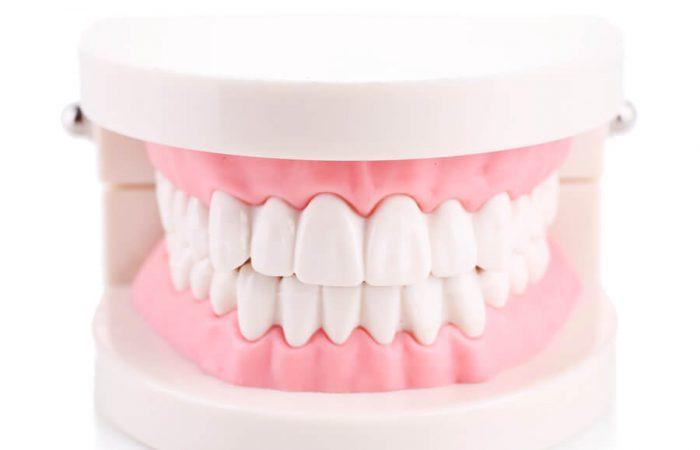 矯正治療で目指す歯並び