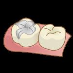 銀歯を白い詰め物(かぶせ物)にしたい